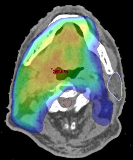 Kopf-Hals-Tumor